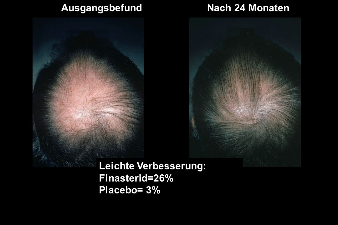 Leichte Verbesserung: Finasterid=26% Placebo= 3% SLIGHT INCREASE: