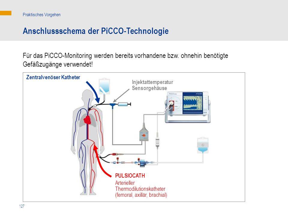Anschlussschema der PiCCO-Technologie