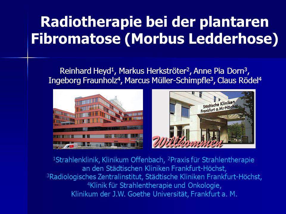 Radiotherapie bei der plantaren Fibromatose (Morbus Ledderhose)