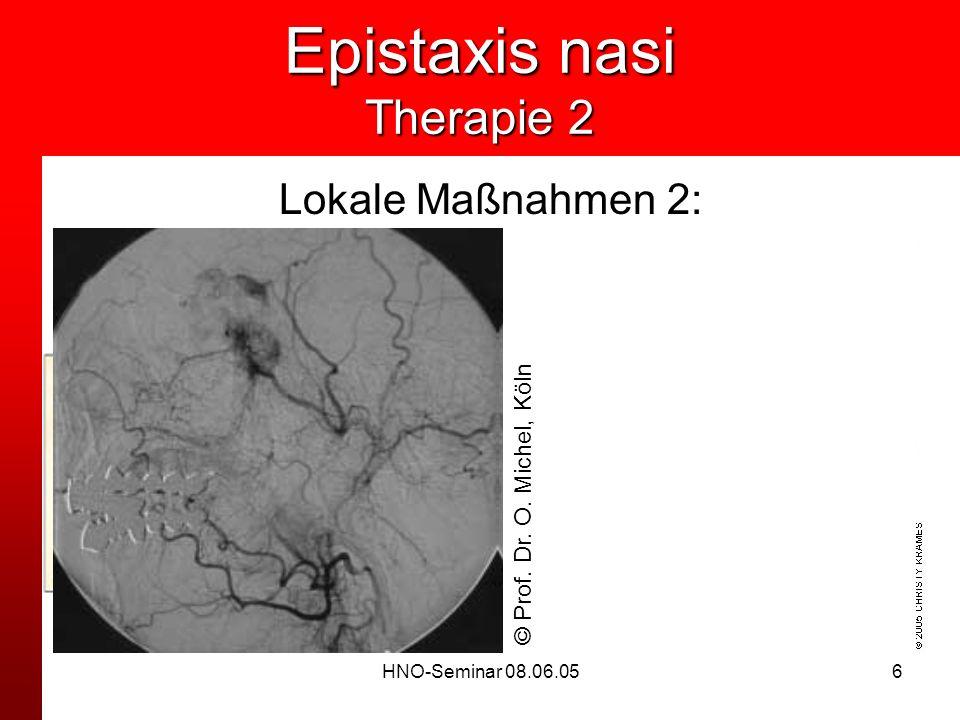 Epistaxis nasi Therapie 2