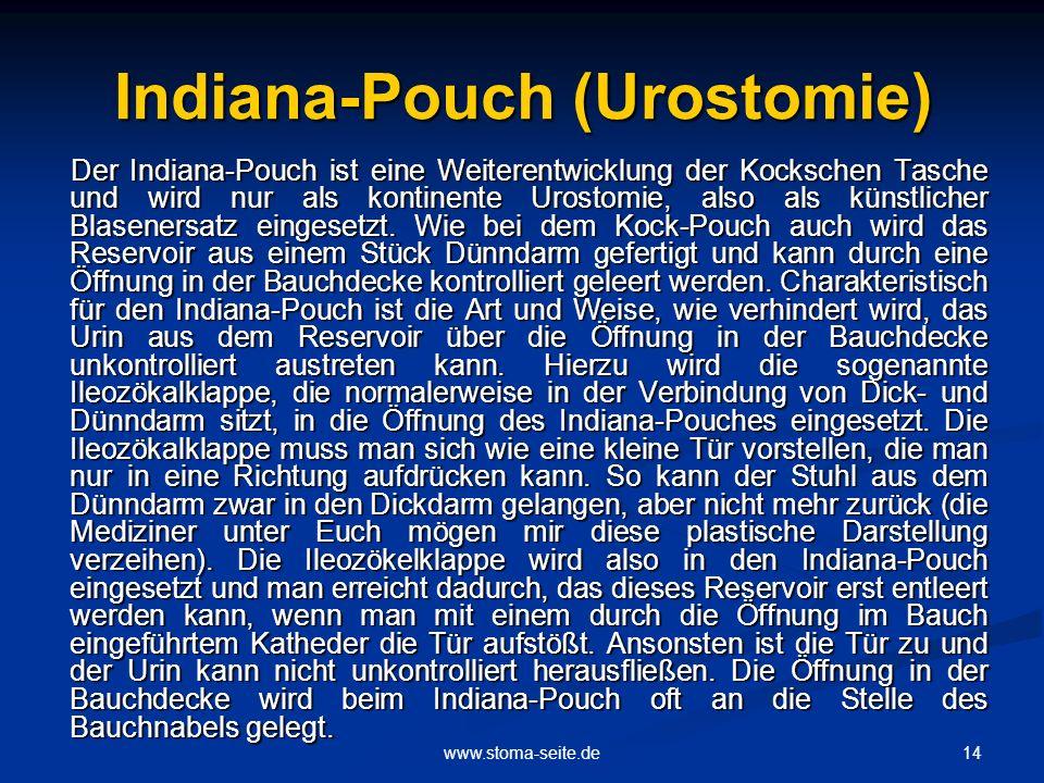 Indiana-Pouch (Urostomie)