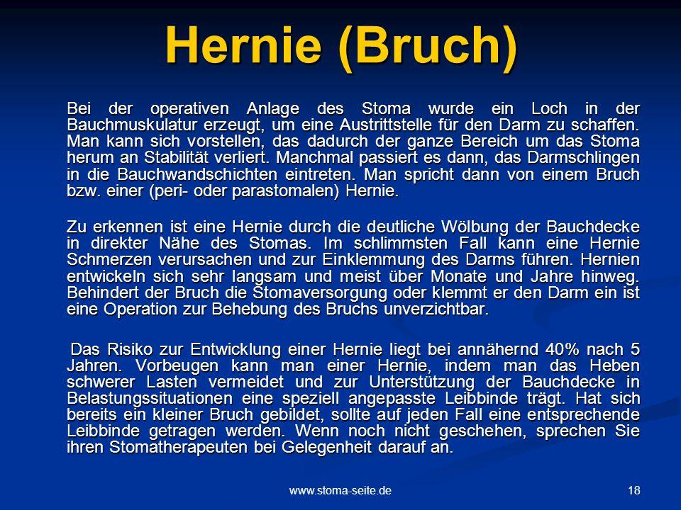 Hernie (Bruch)