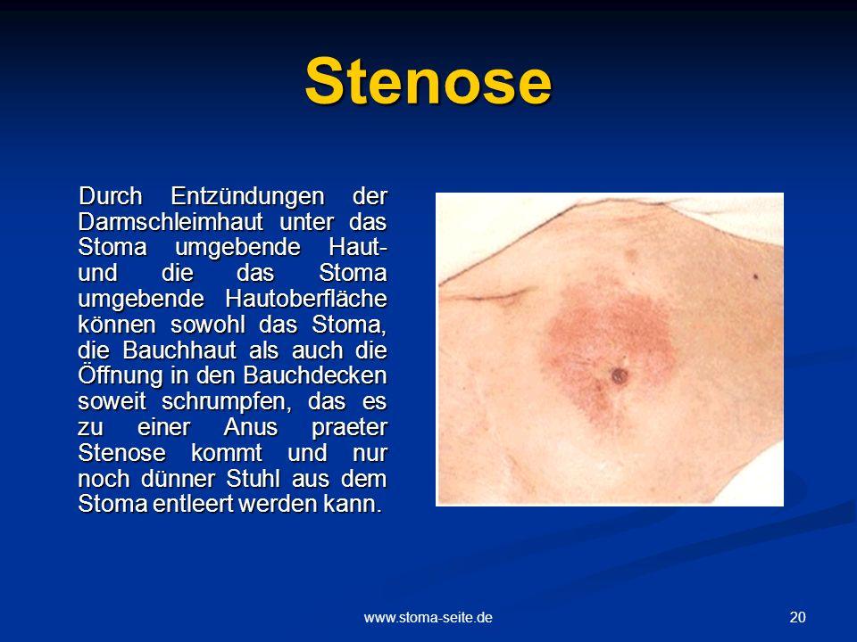 Stenose