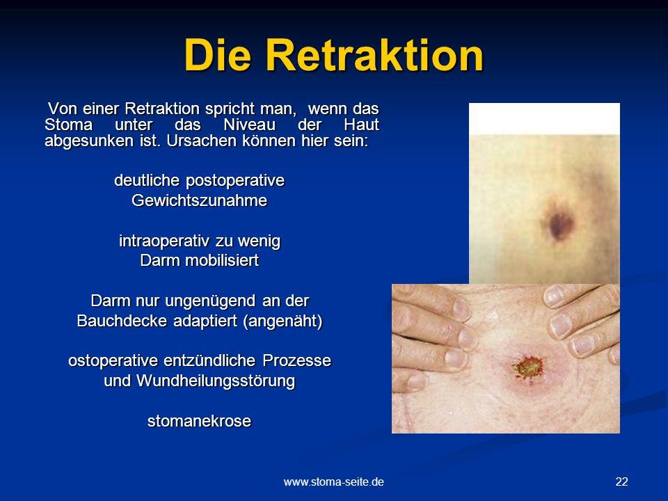 Die Retraktion Von einer Retraktion spricht man, wenn das Stoma unter das Niveau der Haut abgesunken ist. Ursachen können hier sein: