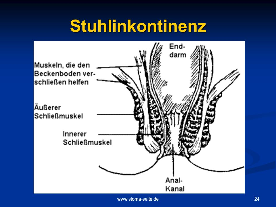 Stuhlinkontinenz www.stoma-seite.de