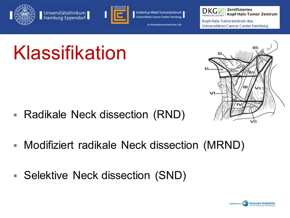 Klassifikation Radikale Neck dissection (RND)