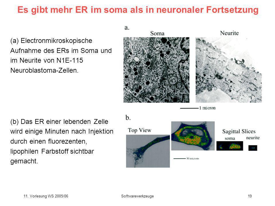 Es gibt mehr ER im soma als in neuronaler Fortsetzung