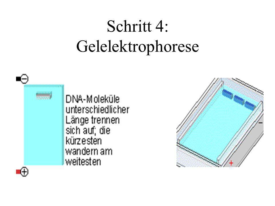 Schritt 4: Gelelektrophorese