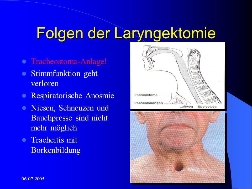 Folgen der Laryngektomie
