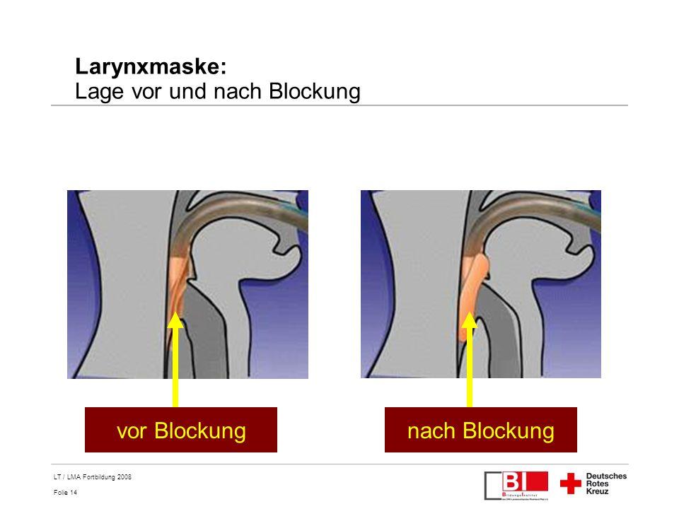 Larynxmaske: Lage vor und nach Blockung