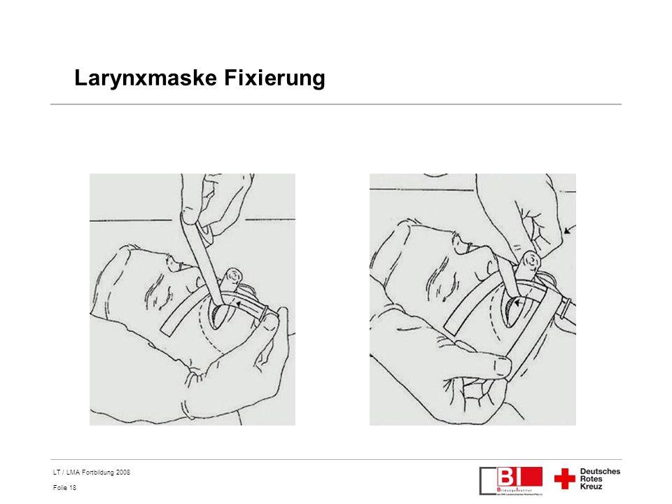 Larynxmaske Fixierung