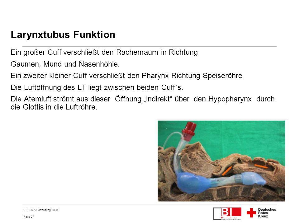 Larynxtubus Funktion Ein großer Cuff verschließt den Rachenraum in Richtung. Gaumen, Mund und Nasenhöhle.