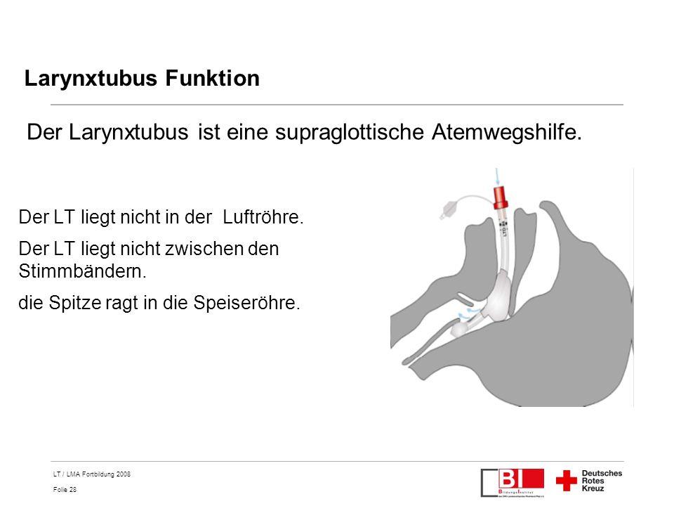 Der Larynxtubus ist eine supraglottische Atemwegshilfe.
