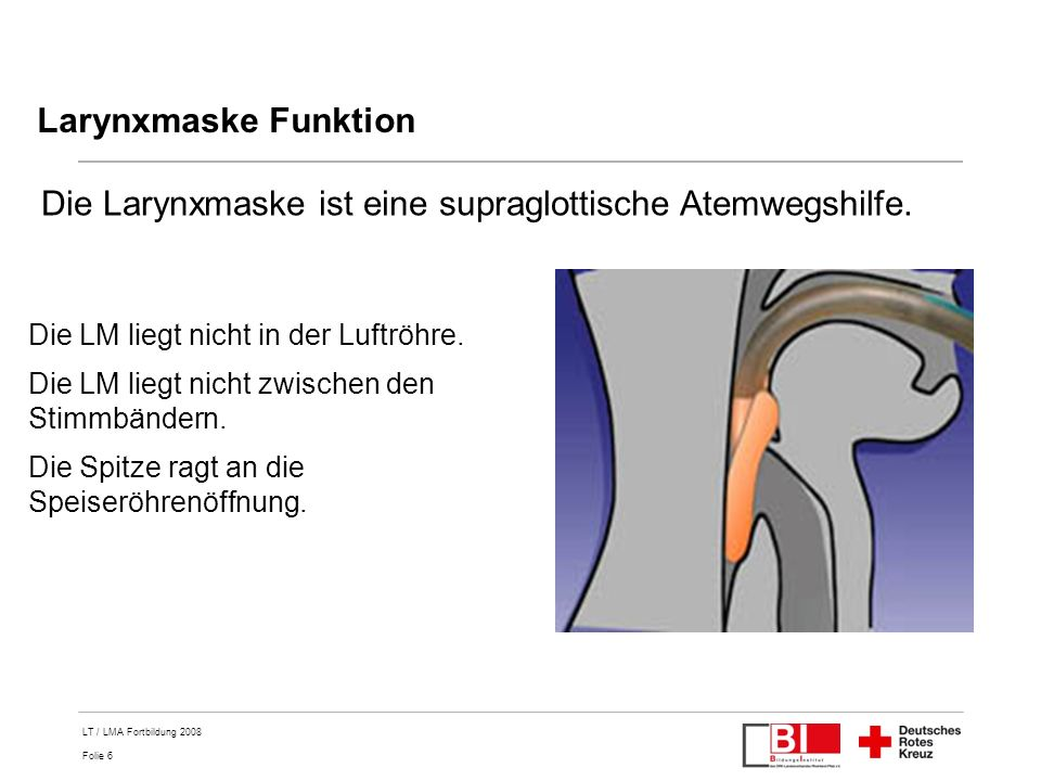 Die Larynxmaske ist eine supraglottische Atemwegshilfe.