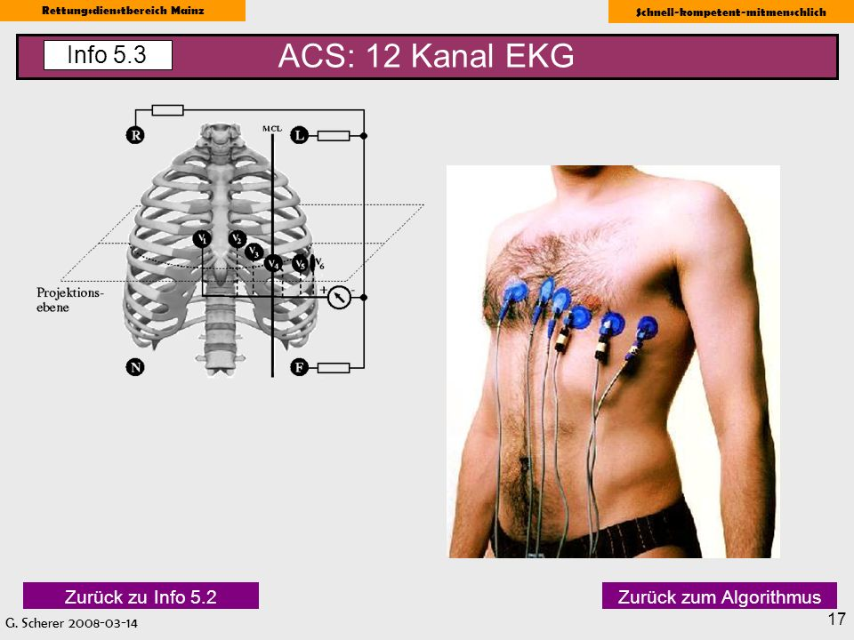 ACS: 12 Kanal EKG Info 5.3 Zurück zu Info 5.2 Zurück zum Algorithmus