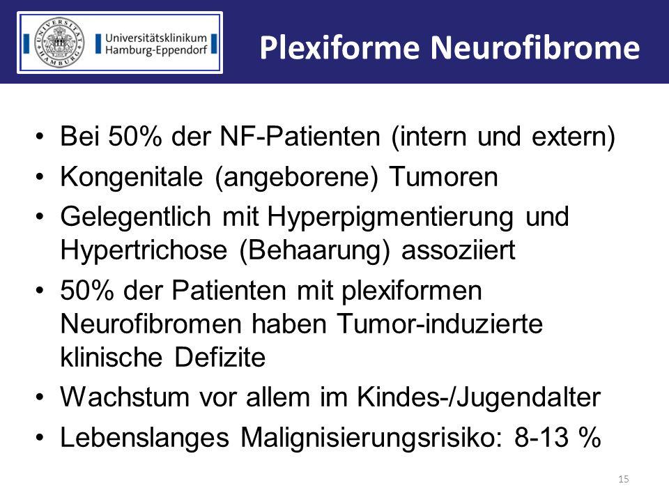 Plexiforme Neurofibrome