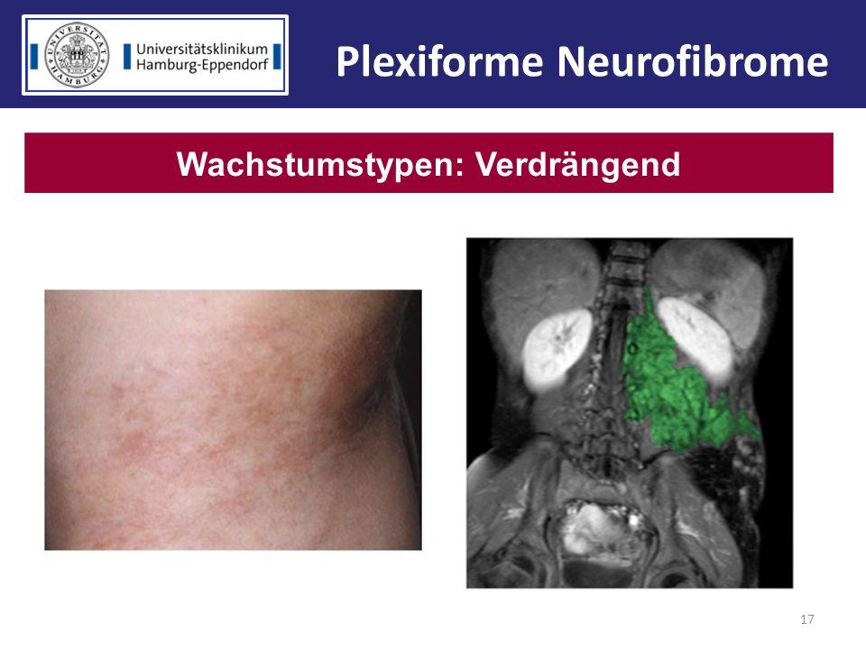 Plexiforme Neurofibrome Wachstumstypen: Verdrängend