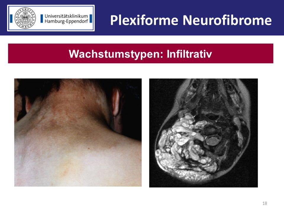 Plexiforme Neurofibrome Wachstumstypen: Infiltrativ