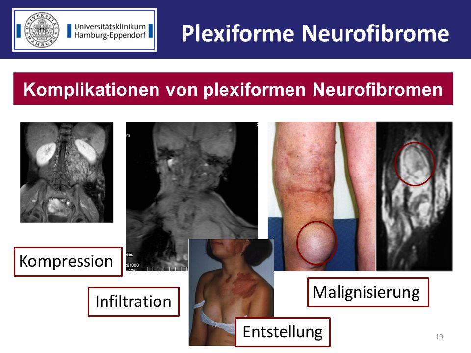 Plexiforme Neurofibrome Komplikationen von plexiformen Neurofibromen
