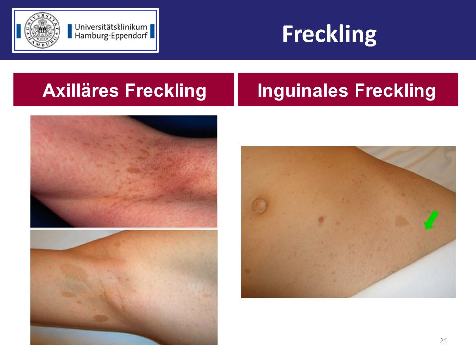 Freckling Axilläres Freckling Inguinales Freckling 21