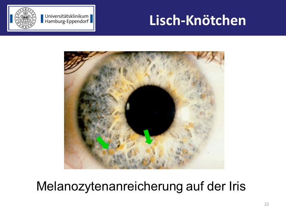Melanozytenanreicherung auf der Iris