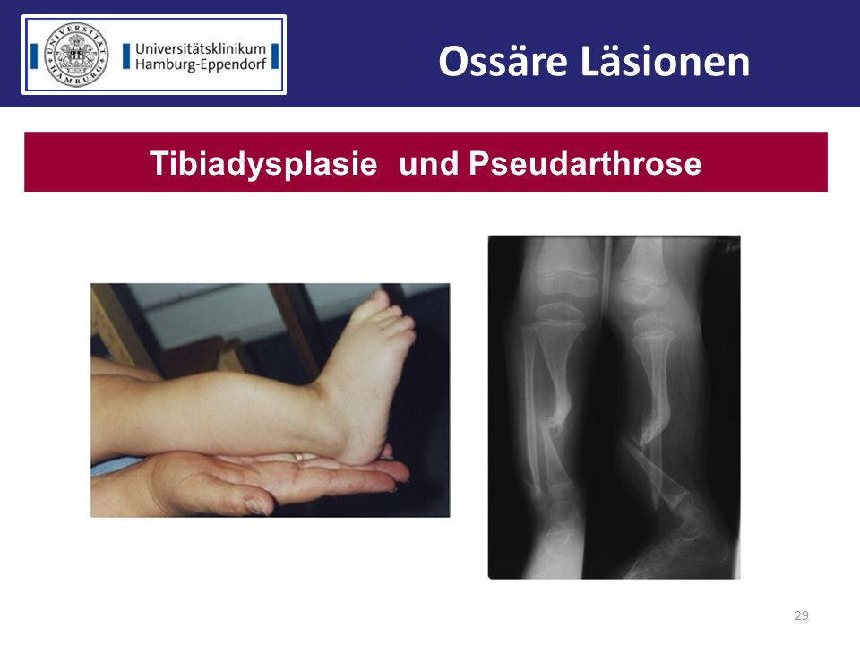 Tibiadysplasie und Pseudarthrose