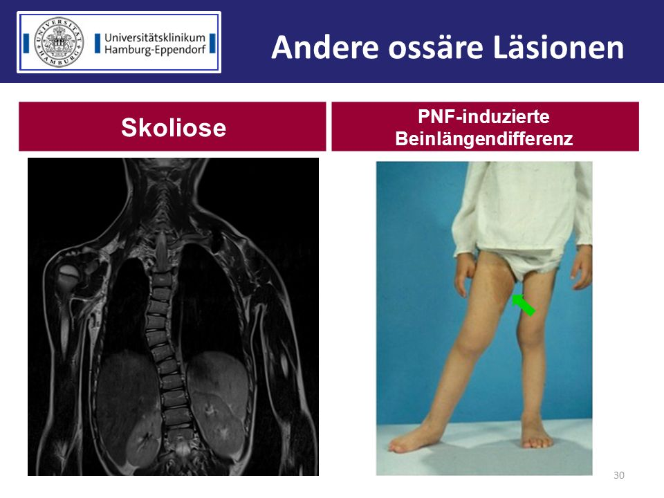 Andere ossäre Läsionen PNF-induzierte Beinlängendifferenz