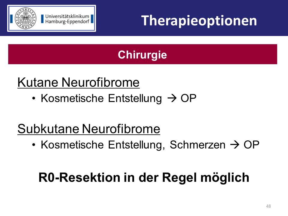 R0-Resektion in der Regel möglich