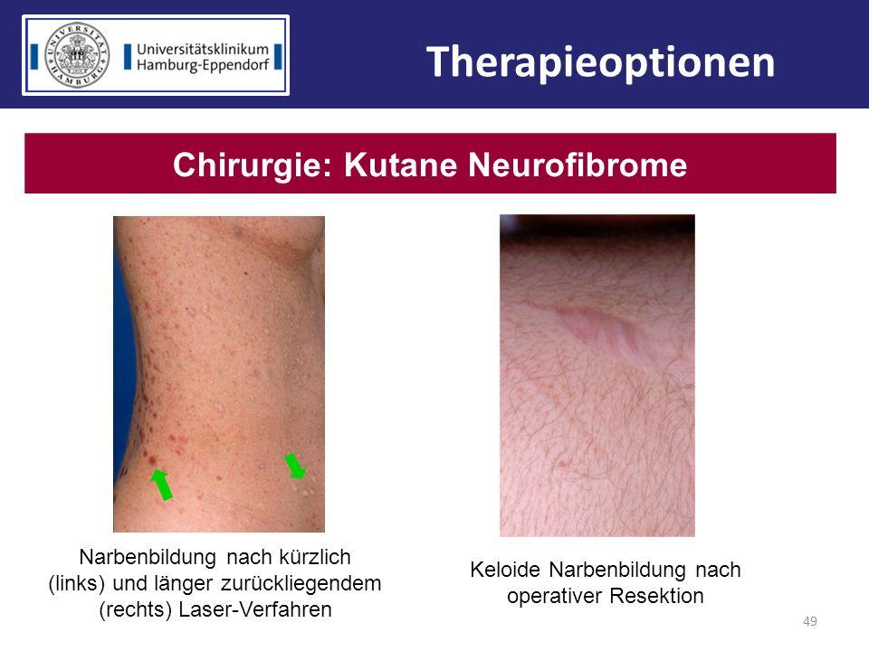 Chirurgie: Kutane Neurofibrome
