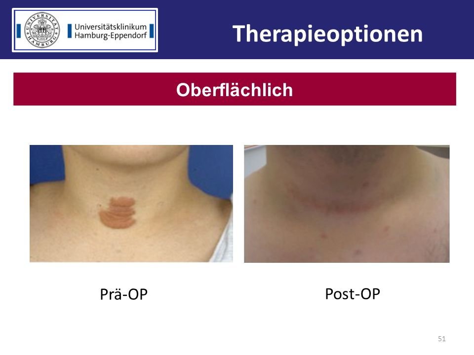 Therapieoptionen Oberflächlich Prä-OP Post-OP 51