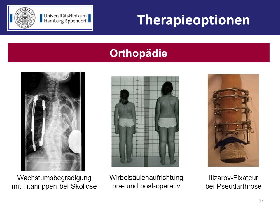 Therapieoptionen Orthopädie