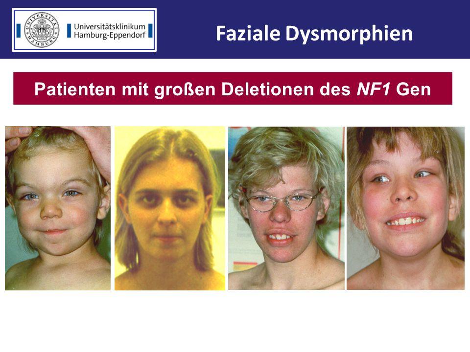 Patienten mit großen Deletionen des NF1 Gen