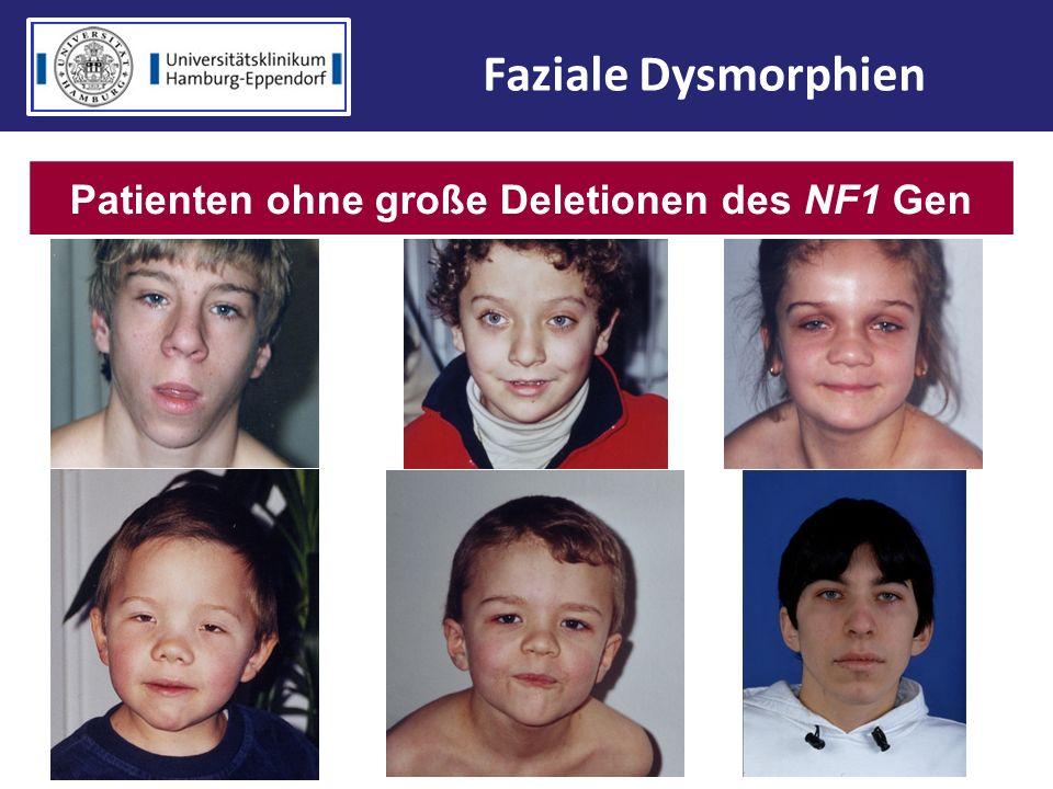Patienten ohne große Deletionen des NF1 Gen