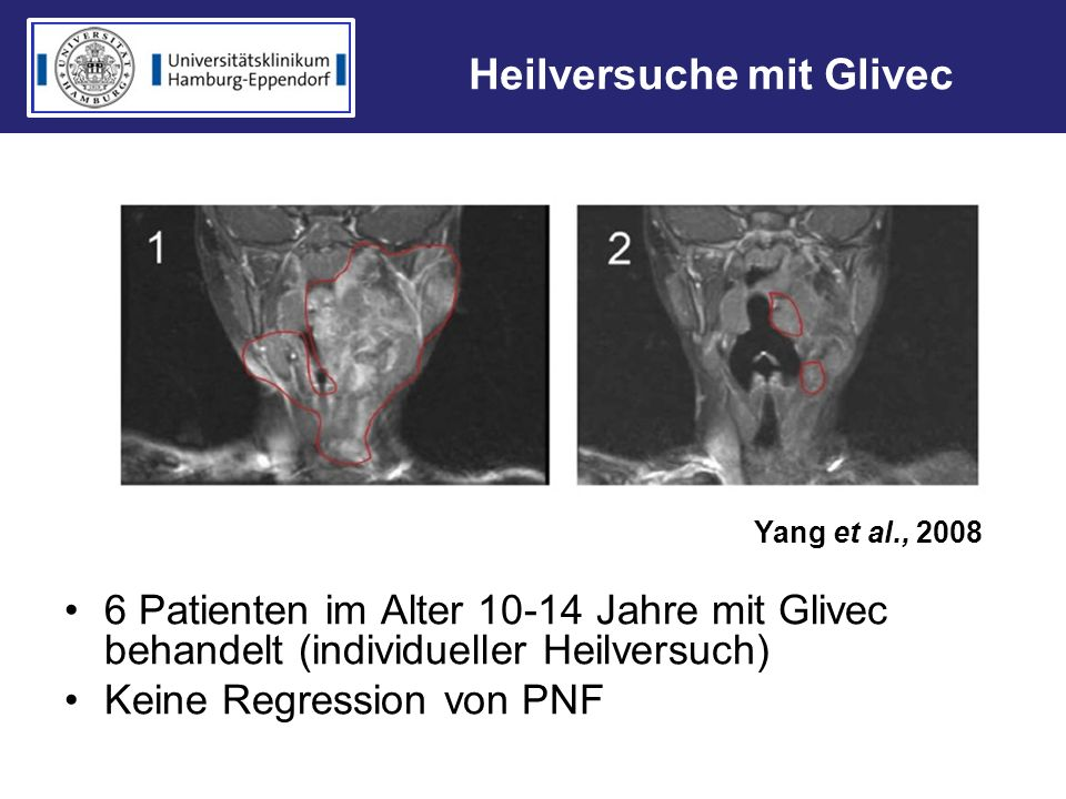 Heilversuche mit Glivec