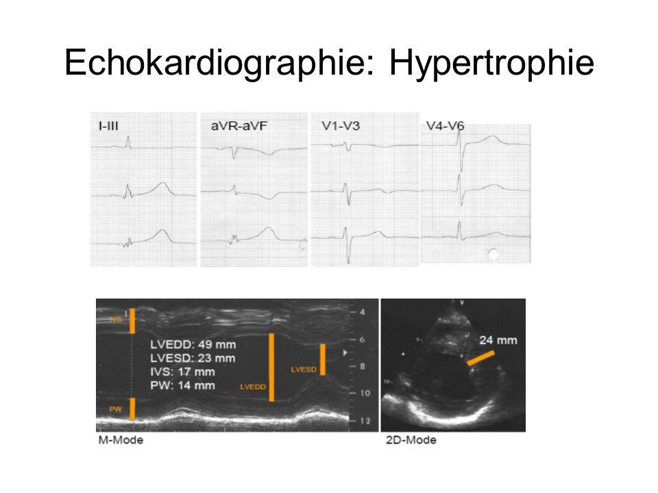 Echokardiographie: Hypertrophie