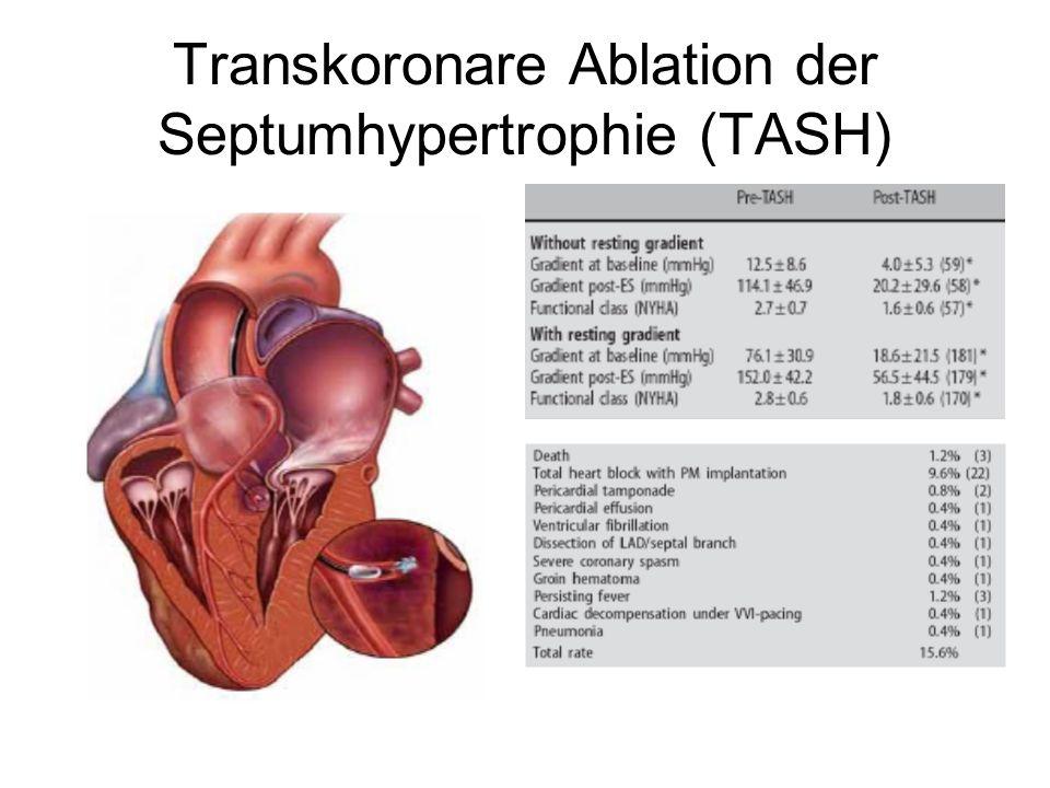 Transkoronare Ablation der Septumhypertrophie (TASH)