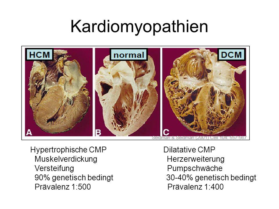 Kardiomyopathien Hypertrophische CMP Dilatative CMP