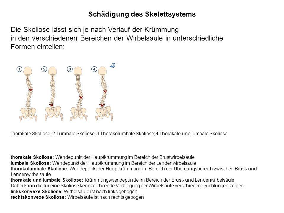 Schädigung des Skelettsystems