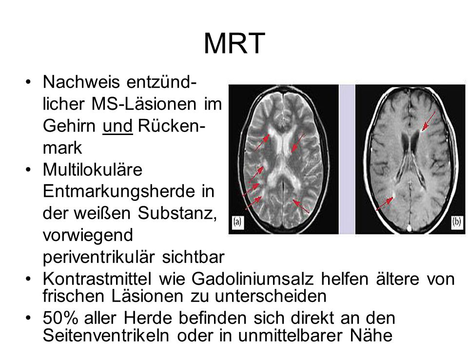 MRT Nachweis entzünd- licher MS-Läsionen im Gehirn und Rücken- mark
