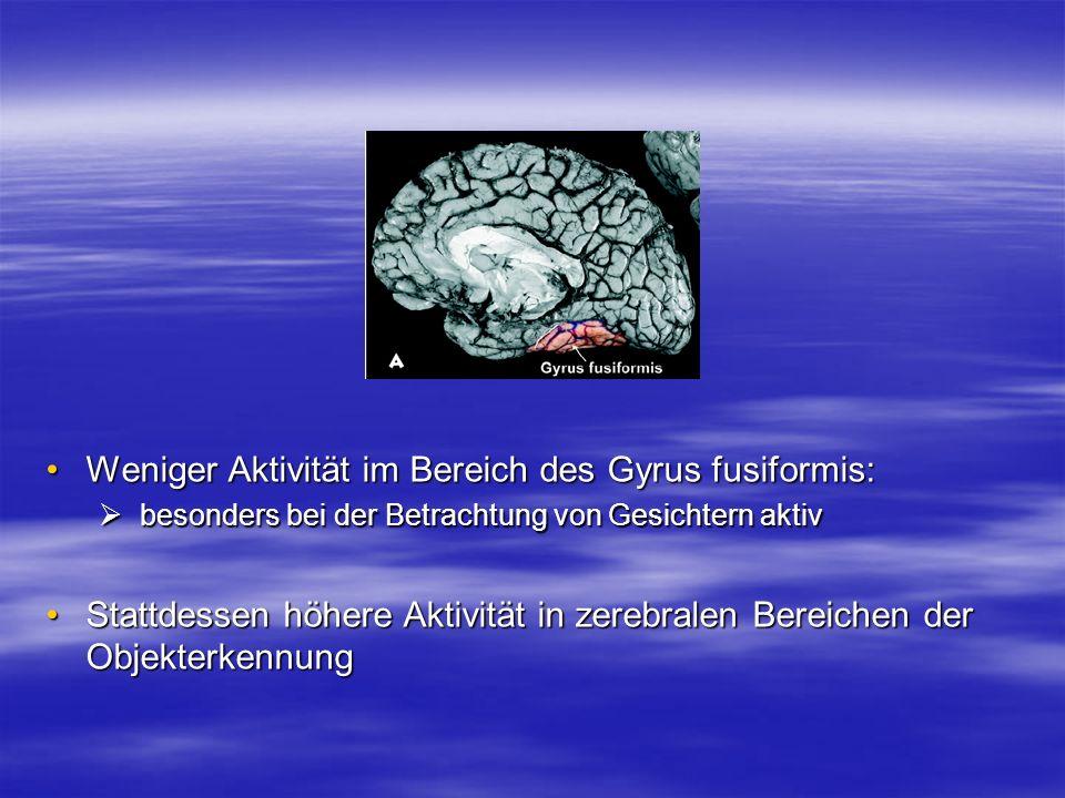 Weniger Aktivität im Bereich des Gyrus fusiformis:
