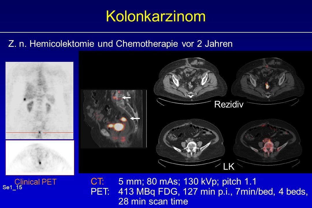 Kolonkarzinom Z. n. Hemicolektomie und Chemotherapie vor 2 Jahren