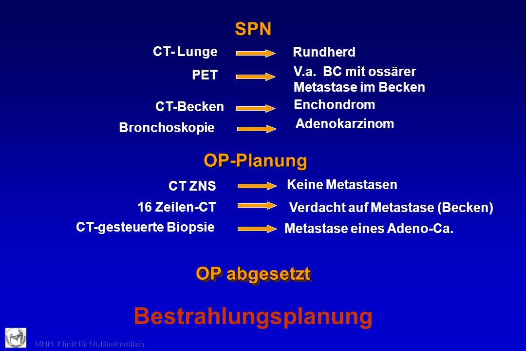 Bestrahlungsplanung SPN OP-Planung OP abgesetzt CT- Lunge Rundherd