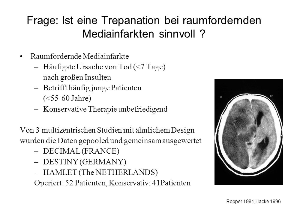 Frage: Ist eine Trepanation bei raumfordernden Mediainfarkten sinnvoll