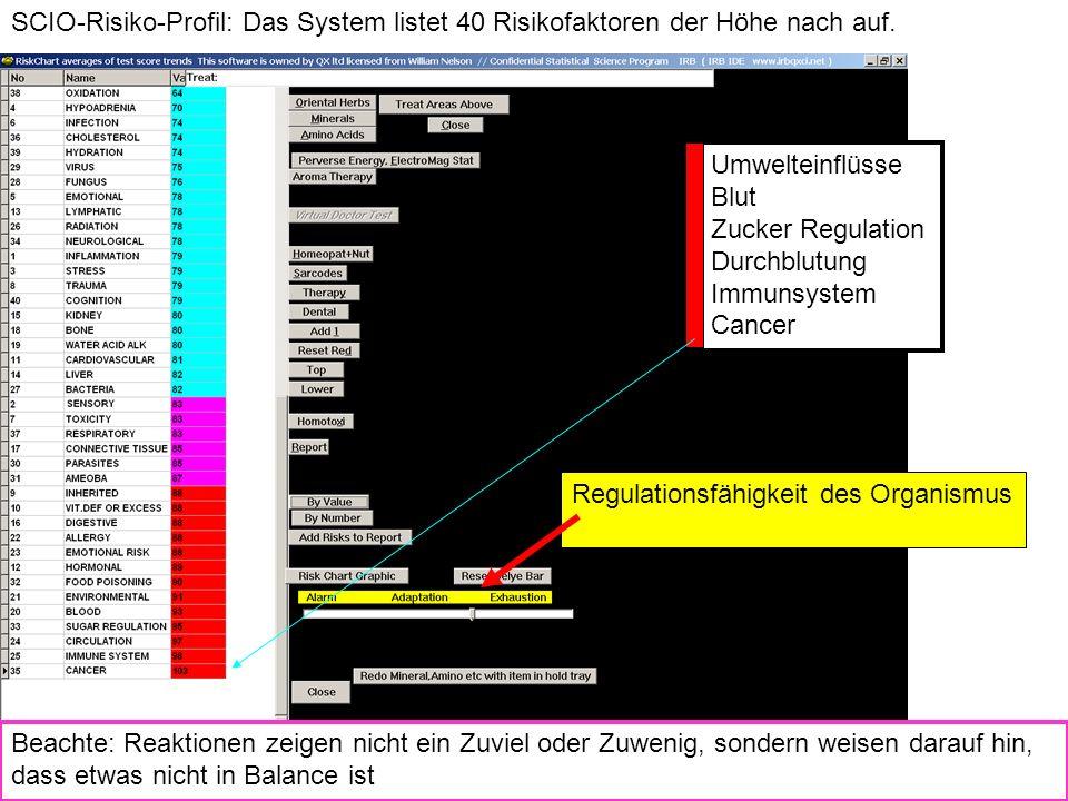 SCIO-Risiko-Profil: Das System listet 40 Risikofaktoren der Höhe nach auf.