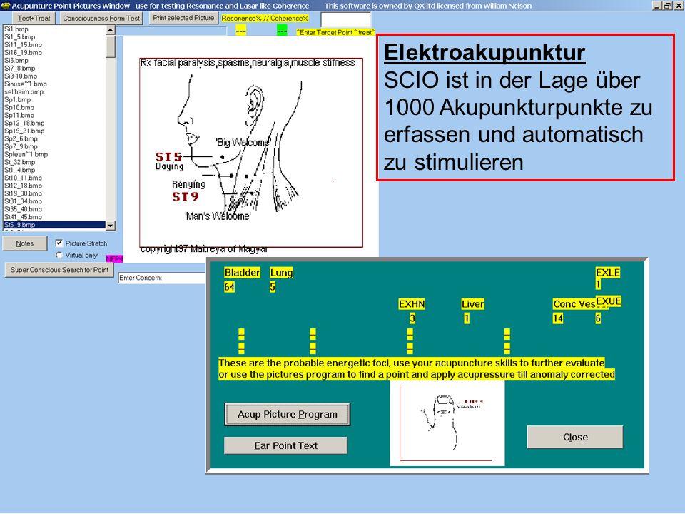 Elektroakupunktur SCIO ist in der Lage über 1000 Akupunkturpunkte zu erfassen und automatisch zu stimulieren.