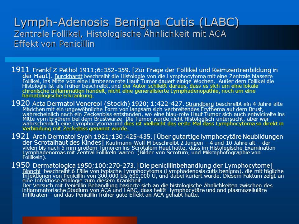 Lymph-Adenosis Benigna Cutis (LABC) Zentrale Follikel, Histologische Ähnlichkeit mit ACA Effekt von Penicillin