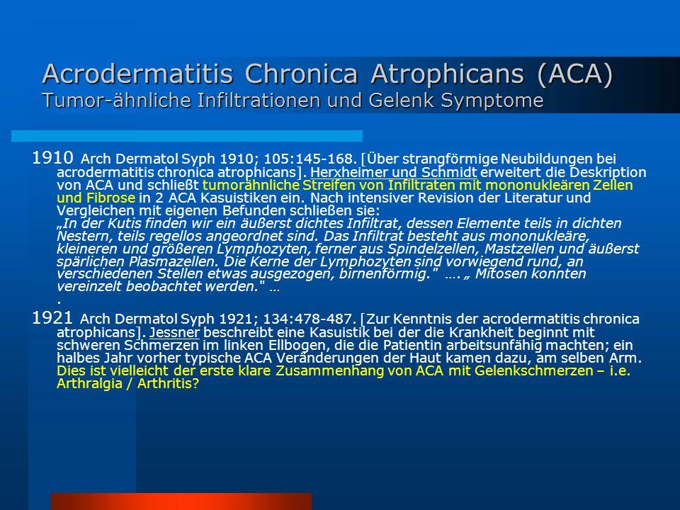 Acrodermatitis Chronica Atrophicans (ACA) Tumor-ähnliche Infiltrationen und Gelenk Symptome