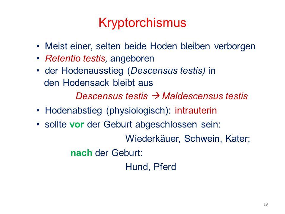 Kryptorchismus Meist einer, selten beide Hoden bleiben verborgen