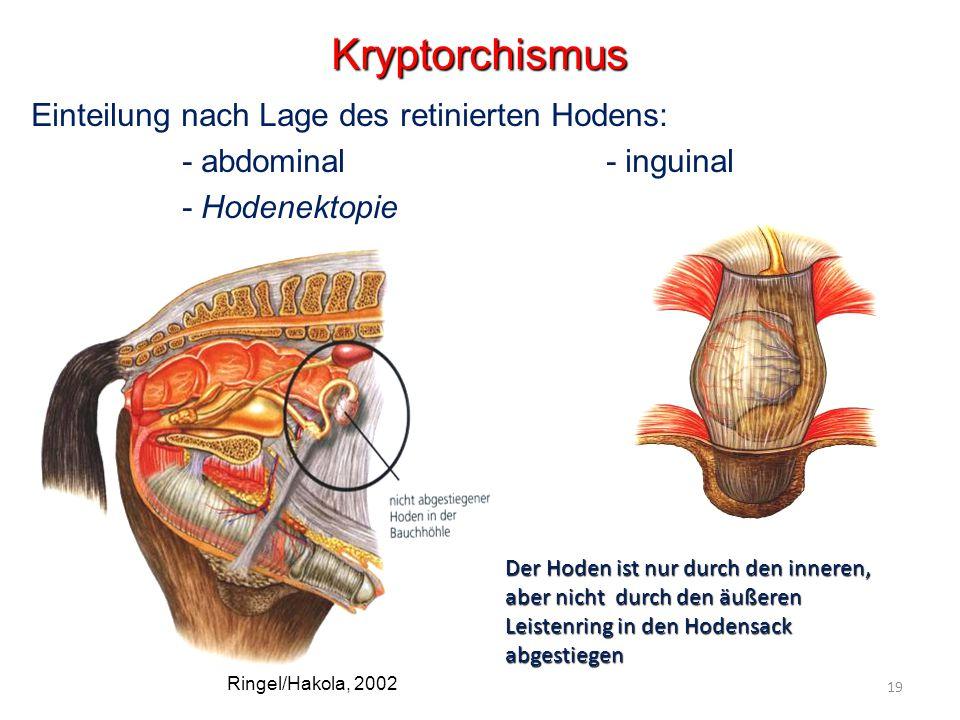 Kryptorchismus Einteilung nach Lage des retinierten Hodens: