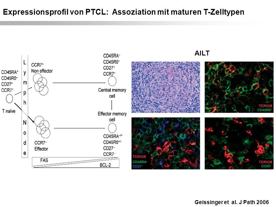 Expressionsprofil von PTCL: Assoziation mit maturen T-Zelltypen